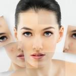 Tratarea acneei in mod natural?