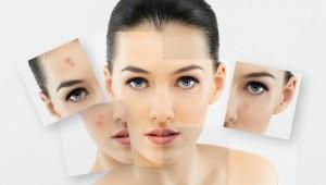 acnee, tratamente naturiste