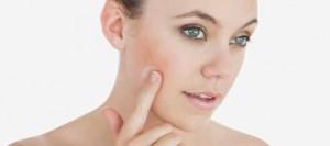 acnee rozacee